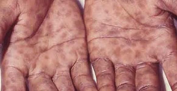 frengi-syphilis-hands